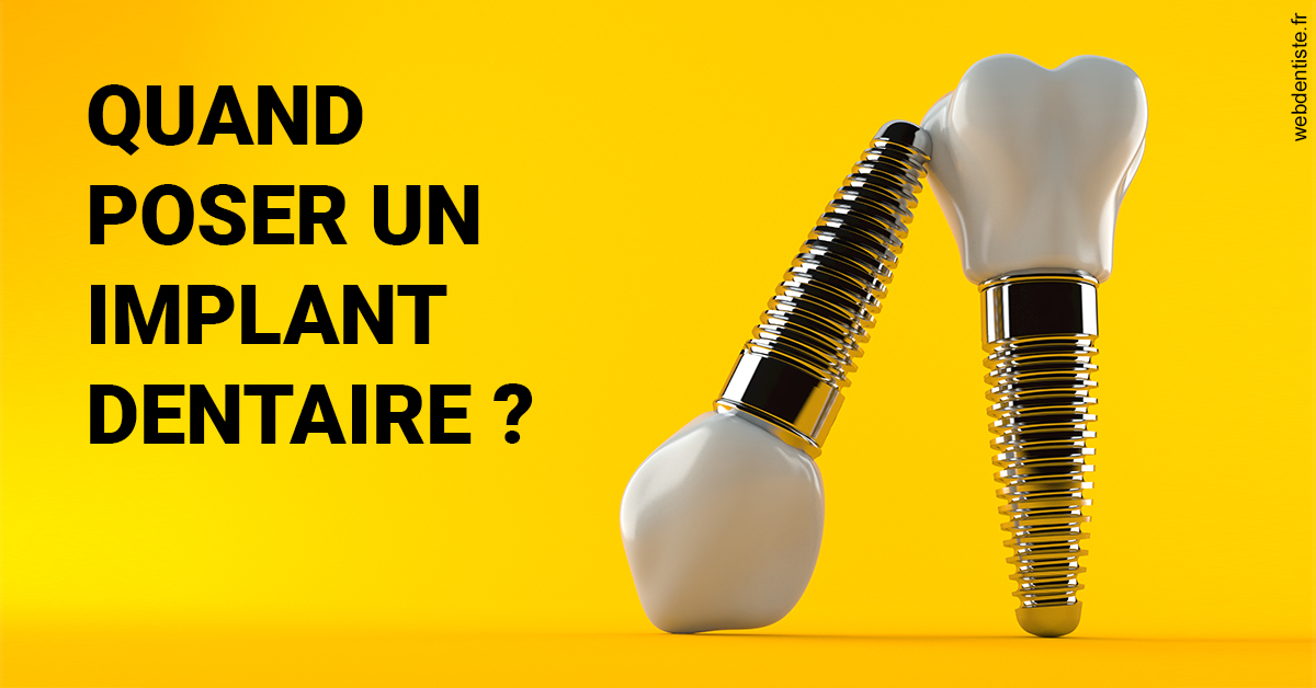 https://dr-bonne-patrick.chirurgiens-dentistes.fr/Les implants 2